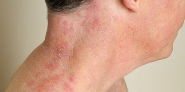Symptoms and treatment options for shingles