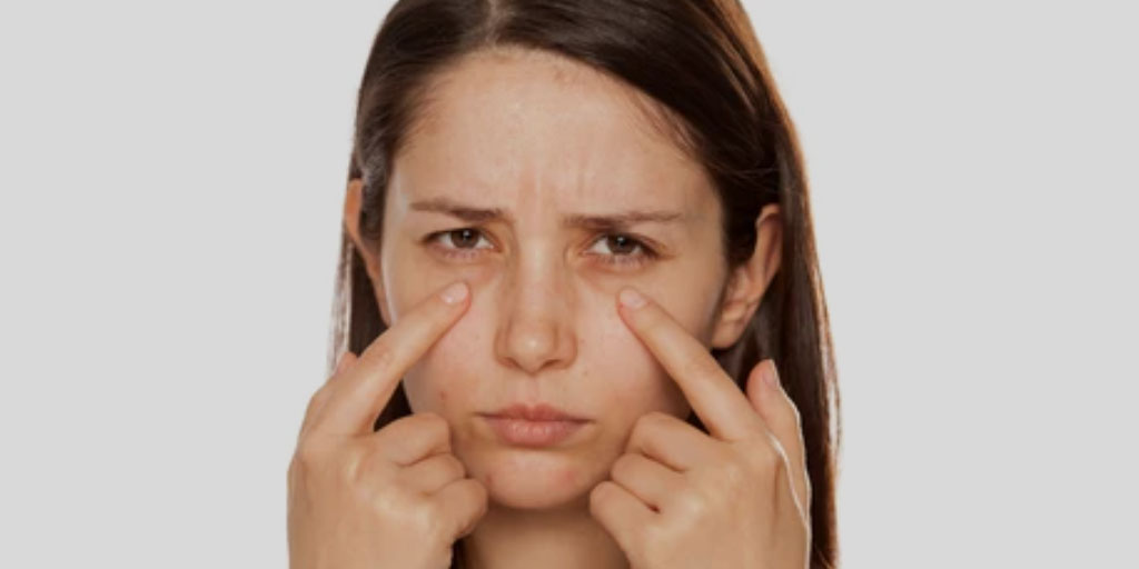 Ayurveda Recommended Natural Treatments To Cure Deep Sunken Eyes