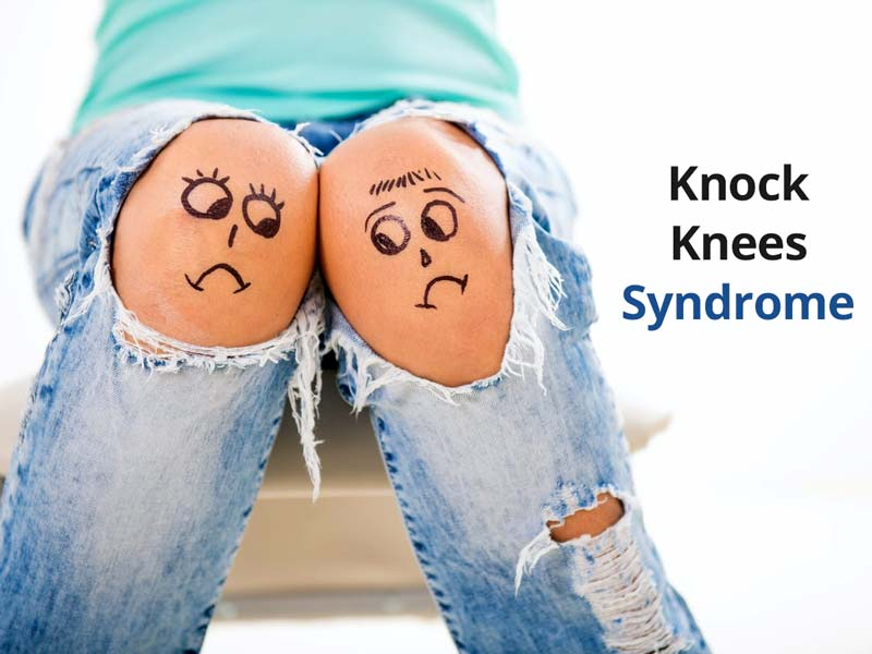 Knocking Knees: Know Symptoms, Causes And Treatment From Expert